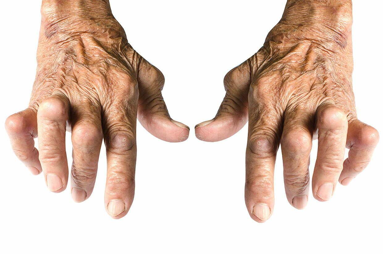 artroplastia-02